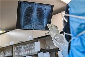 تصویر  ریه بهبود یافتگان کرونا چه زمانی خوب می شود؟