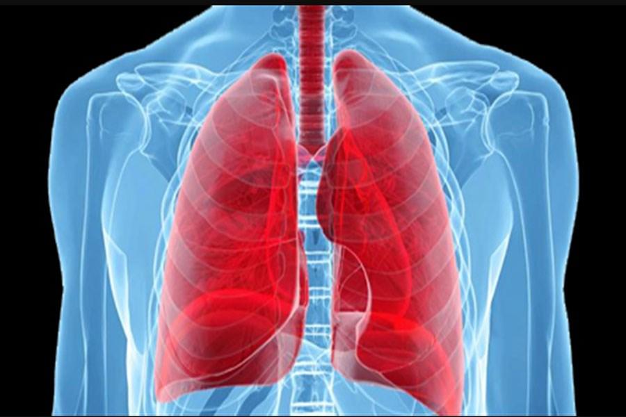 انتقال کووید19 در جریان پیوند ریه و مرگ فرد دریافتکننده