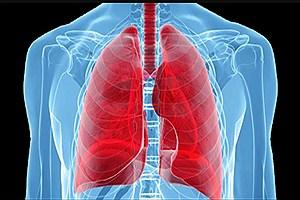 تصویر  انتقال کووید19 در جریان پیوند ریه و مرگ فرد دریافتکننده