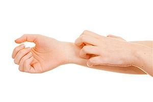 تصویر  علل خارش پوست و راههای درمانی آن