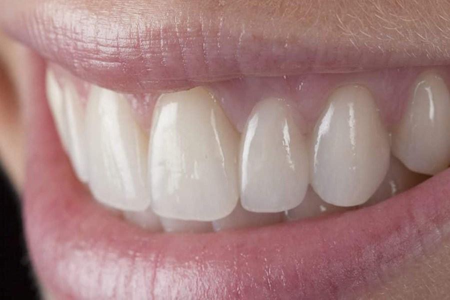 تلاش دانشمندان برای بازسازی دندانهای از دست رفته