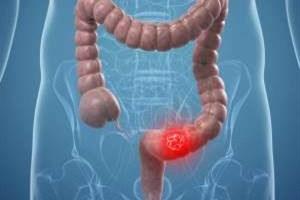 آغاز اجرای طرح پیشگیری از سرطان روده