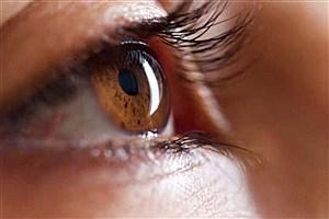تصویر  امیدی جدید برای درمان نوعی سرطان نادر چشم