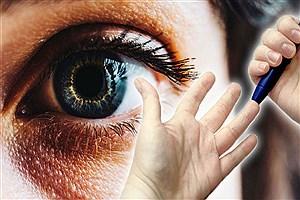 تصویر  عارضهای که چشم را هدف میگیرد