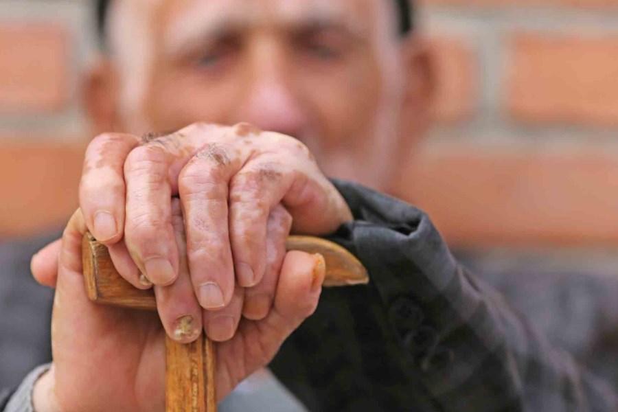 بستریهای کرونایی سالمند ۴۰ درصد کاهش یافت