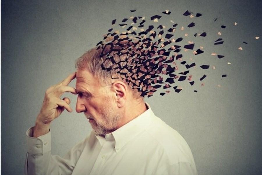 پیش بینی خطر ابتلا به آلزایمر