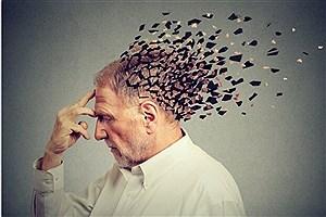 تصویر  پیش بینی خطر ابتلا به آلزایمر