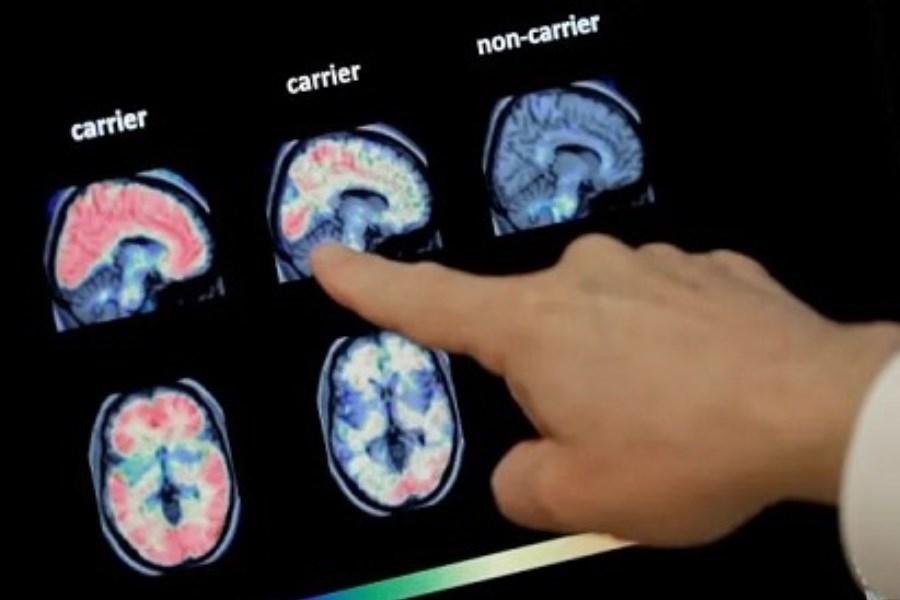 تایید داروی آلزایمر پس از ۲۰ سال
