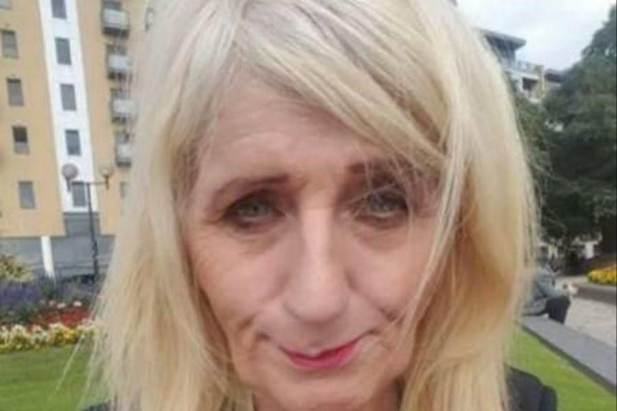 تغییر باورنکردنی چهره پیرزن بعد از جراحی زیبایی