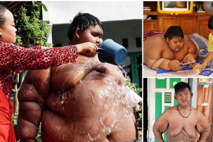 چاقترین کودک جهان!