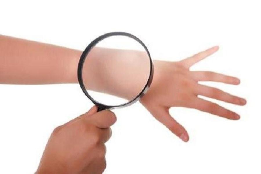 تاثیر استفاده از آنتی بیوتیک ها در درمان سرطان پوست
