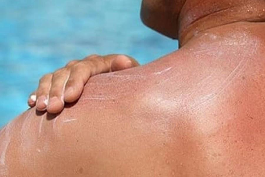 واقعیتهای استفاده از کرمهای آفتاب سوختگی