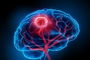 تصویر  کوچک کردن تومور مغزی با کلاه مغناطیسی ممکن شد