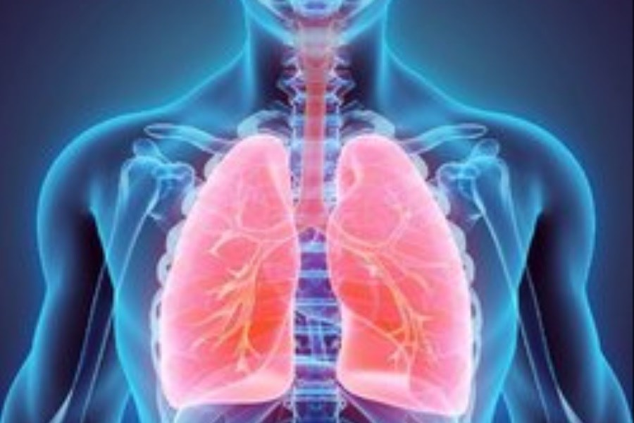 برای سلامت ریه ها چه بخوریم؟