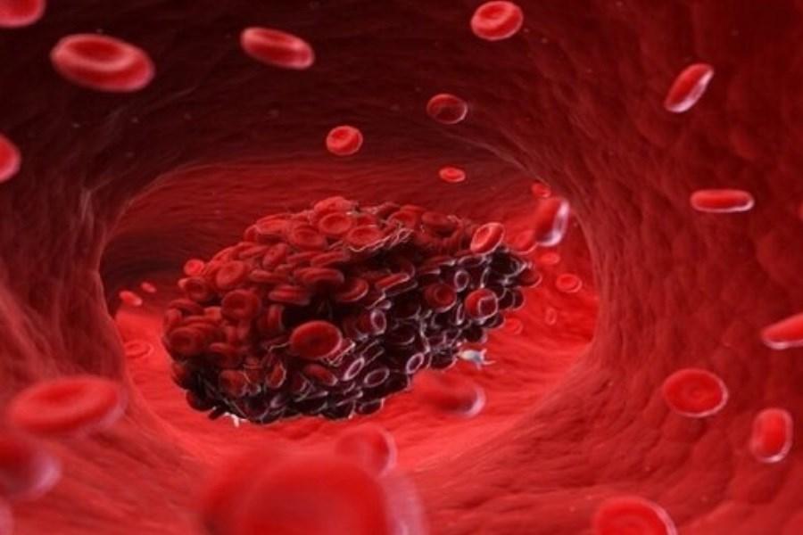 تصویر مهمترین علائم اولیه لخته شدن خون