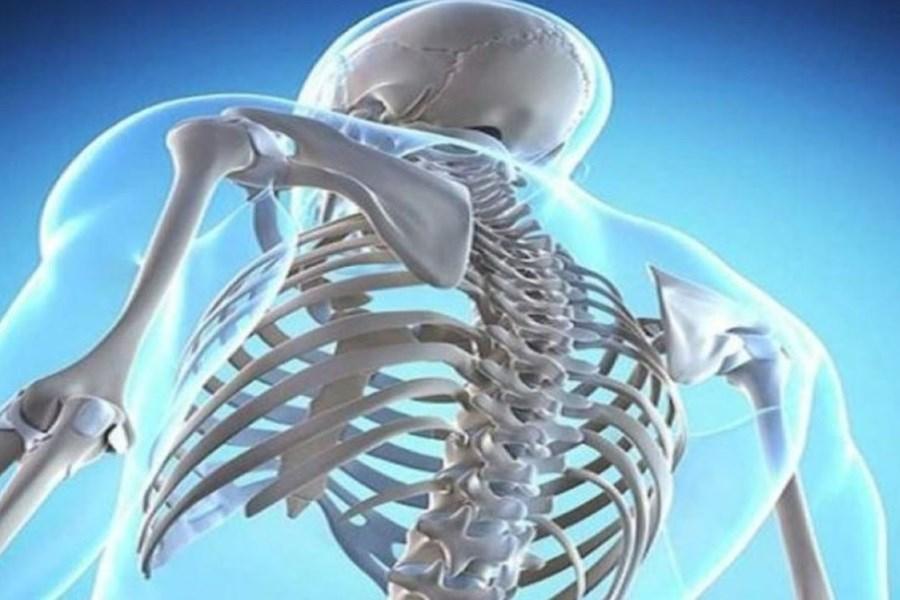 تصویر عادات اشتباهی که باعث تضعیف استخوانها میشود