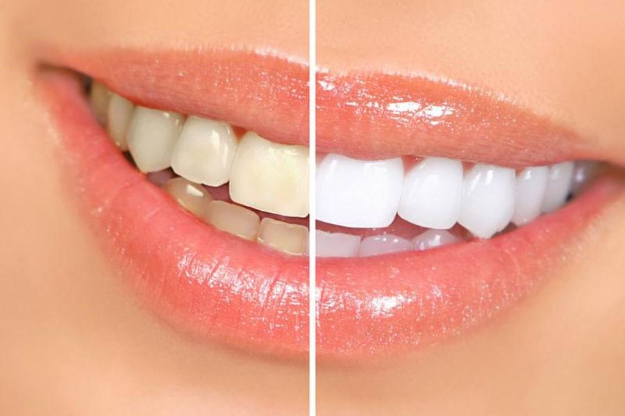 تصویر تاثیر مخرب محصولات سفید کننده بر دندانها