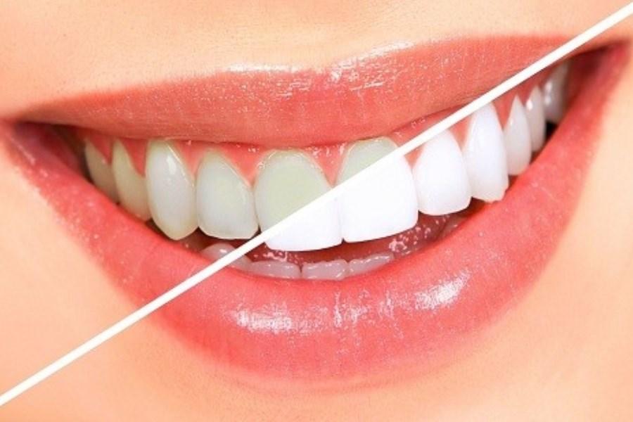 تصویر روش های آسان جرم گیری دندان در خانه