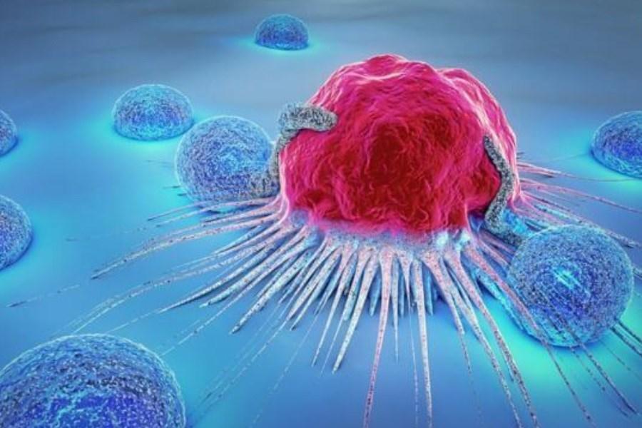 پیشگیری از ۵ سرطان رایج در خانم ها