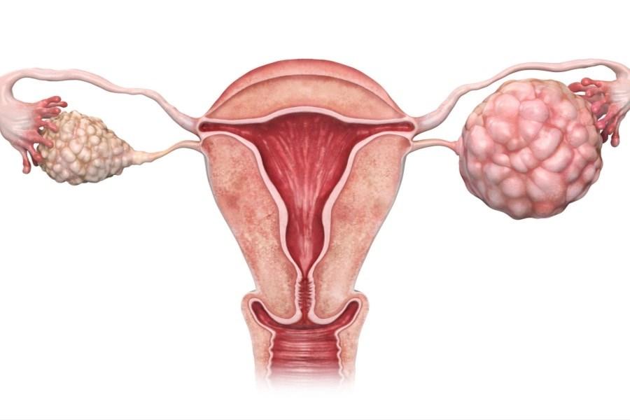 تصویر همه چیز در مورد سرطان تخمدان