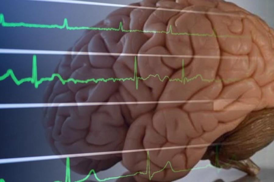 همه چیز در مورد مرگ مغزی