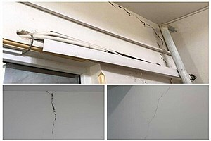 تصویر  یک مصدوم بر اثر زلزله شدید در قوچان