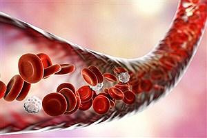 تصویر  بیست و چهارمین عمل پیوند سلولهای بنیادی انجام شد