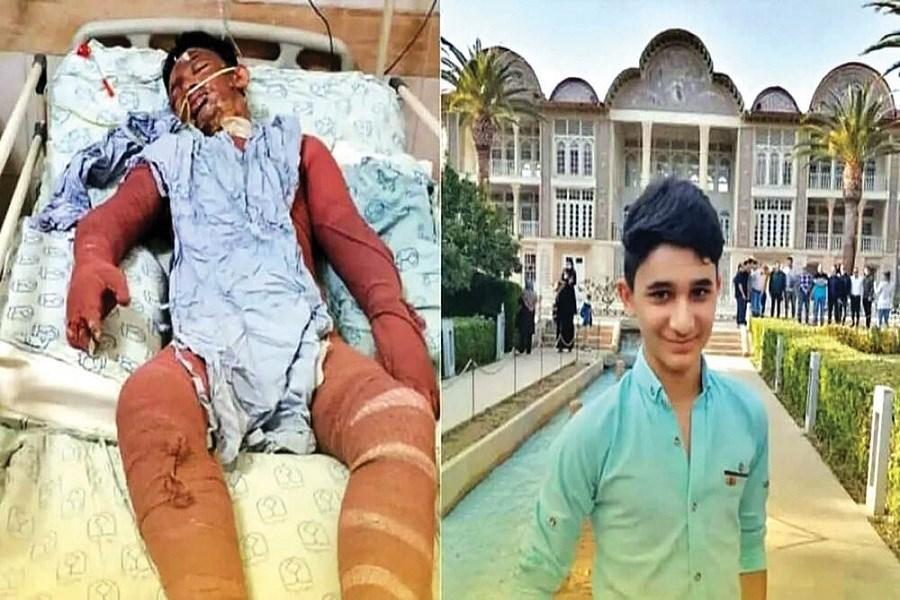 تصویر ضرب الاجل وزیر کشور برای پیگیری درمان نوجوان فداکار ایذهای
