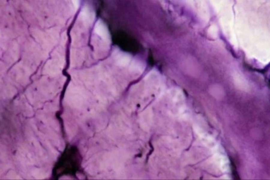 نوعی چربی مسئول انتقال پروتئین ایجاد کننده آلزایمر به مغز است