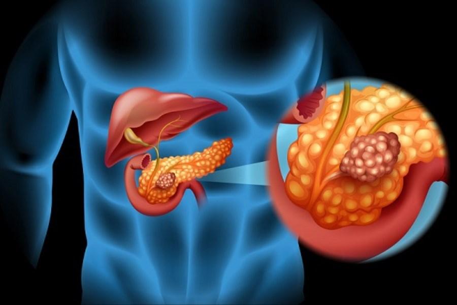 بهبود درمان سرطان لوزالمعده با کمک مدل ۳ بعدی تومور